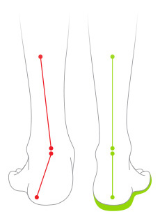 Image of ankle poorly aligned without Align orthotic technology and in good alignment with Align orthotic technology